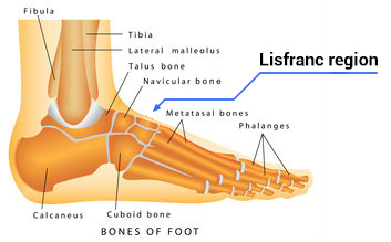 Bones in the Foot: Lisfranc Region