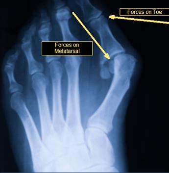 Bunion X Ray