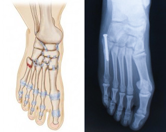 Surgical placement of a screw down the shaft of the 5th metatarsal.