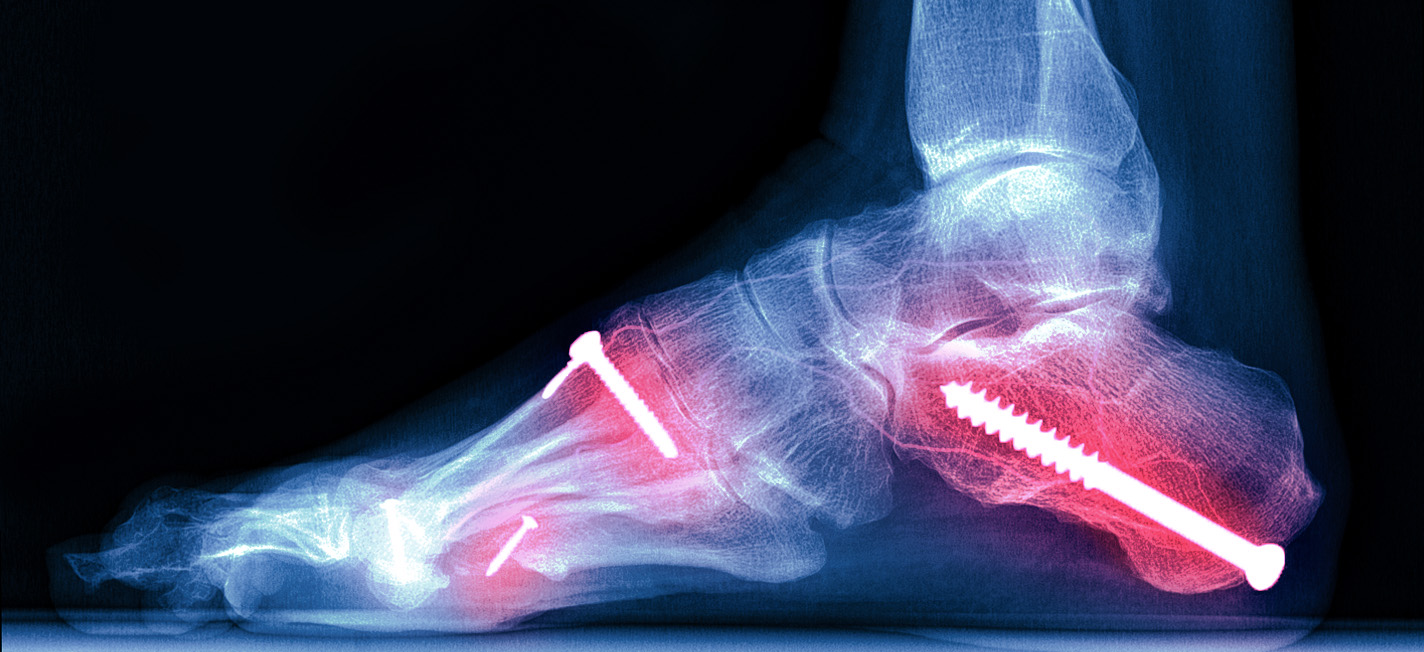 Broken Foot and Foot Fracture Info Center – Causes, Diagnosis and Treatment