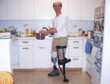jeffrey-l-kitchen-prosthetic-amputee-2