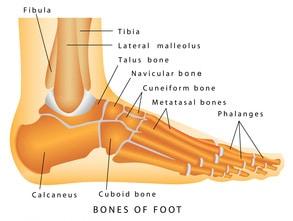 Broken Ankle Injuries