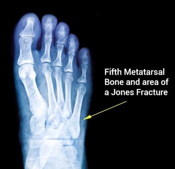 Image result for jones fracture
