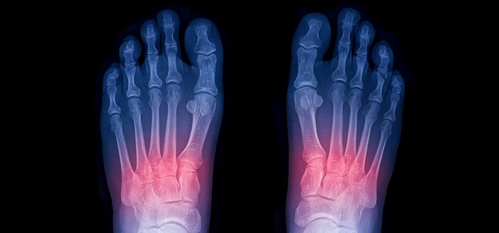 Lisfranc Injury Treatments, Surgery and Recovery