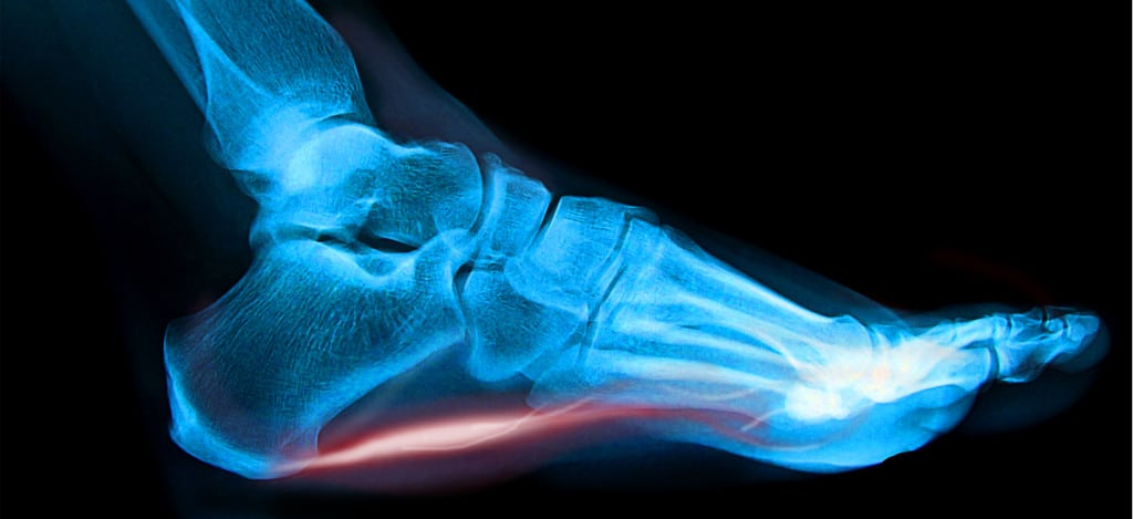 Plantar Fasciitis - Causes and Treatment