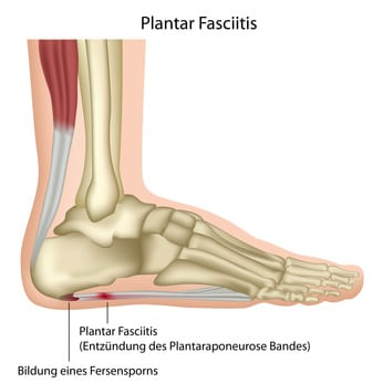 Plantar Fascitis Surgery