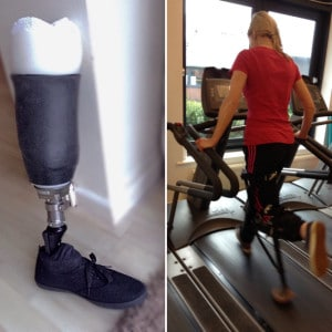 some below knee amputees have stated that learning to walk with a walker crutches knee scooter or hands free device such as iwalk20 helped them