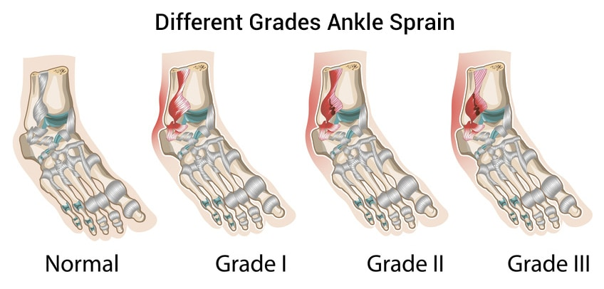 Types And Severity Of Ankle Sprains